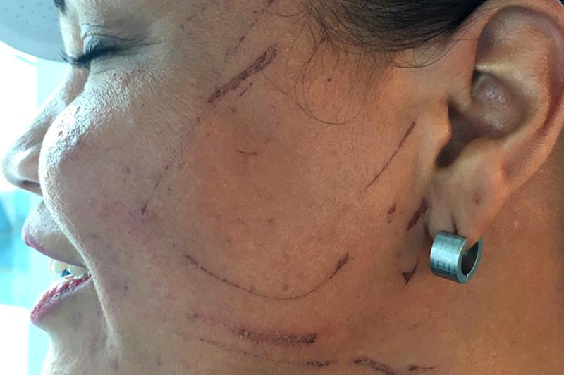 Josefina fue aruñada y agredida cuando hacía una cola por mantequilla