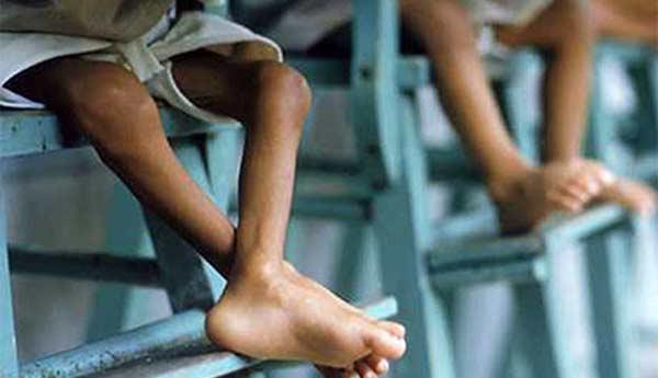 Cáritas detectó 56 niños con desnutrición extrema en Vargas | Foto referencial