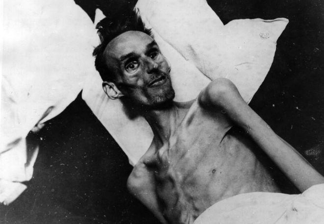 La hambruna holandesa causó estragos en un sector de la población y modificó para siempre la salud de muchos sobrevivientes|KEYSTONE/GETTY IMAGES