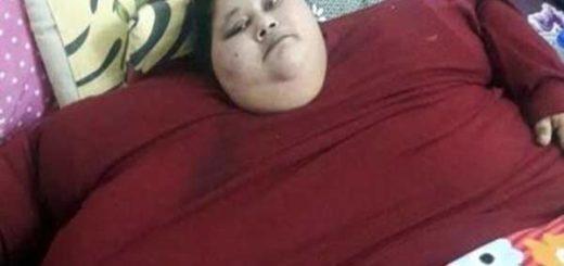 Eman Ahmed Abd El Aty con 36 años pesa casi 500 kilos |Foto: Muffazal Lakdawala