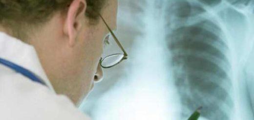 Mujer vivió durante seis días sin pulmones a la espera de un trasplante |  Imagen referencial