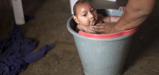 Jose Wesley, el bebé con microcefalia que se convirtió en la cara de la emergencia global por el zika