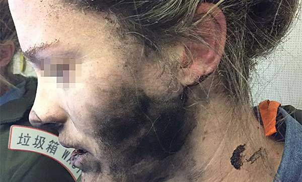 Mujer sufrió quemaduras al explotarle auriculares en un vuelo hacia Australia | Foto: EFE