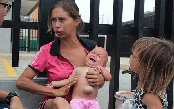 Camila Malpica tiene una hernia umbilical que le invade la mitad de su abdomen | Foto: La Verdad