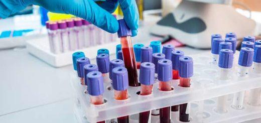 Precios de exámenes de laboratorio aumentaron hasta 650% en Zulia | Foto: Archivo