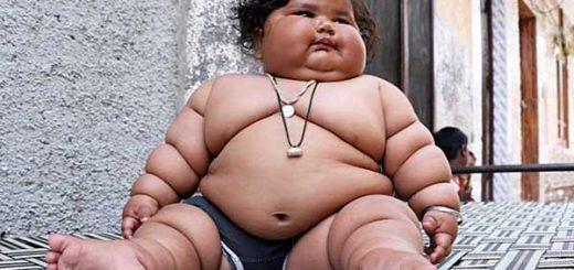Chahat Kumar, el bebé de 8 meses que pesa 17 kilos | Foto: BARCROFT MEDIA