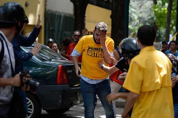 Diputado Juan Requesens envía mensaje luego de la agresion sufrida   Foto: AFP