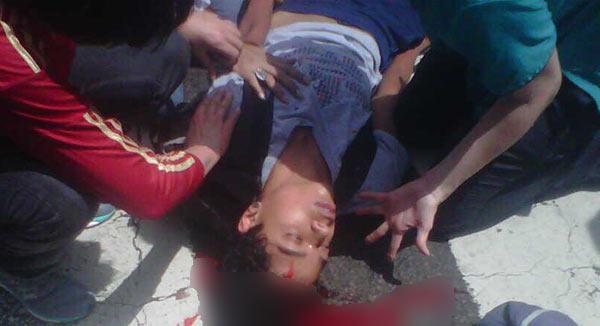 Joven manifestante resulta herido de bala en la cabeza en San Bernardino | Foto: Twitter