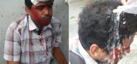 Periodista resulta herido por bomba lacrimógena | Foto: Twitter