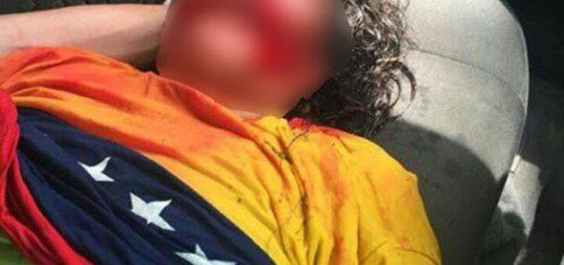Señora fue agredida con chorro de agua de ballena durante protesta en Guayana