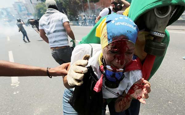 La señora Yoliter Rodríguez fue herida en la cabeza durante una protesta | Reuters