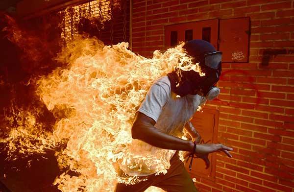 Manifestante sufrió graves quemaduras durante protestas de este #3May   Foto: AFP