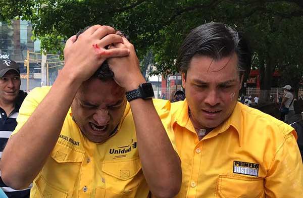 Diputado Olivares fue herido con lacrimógena en la cabeza | Foto: @RobertoPatino
