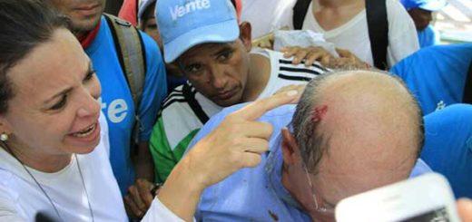 Diputado  Omar González Moreno fue herido en la cabeza durante represión en Anzoátegui   Foto: @MariaCorinaYA