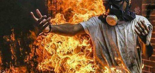 Victor Salazar sufrió fuertes quemaduras  en su cuerpo tras intentar incendiar una moto durante protestas |Foto cortesía