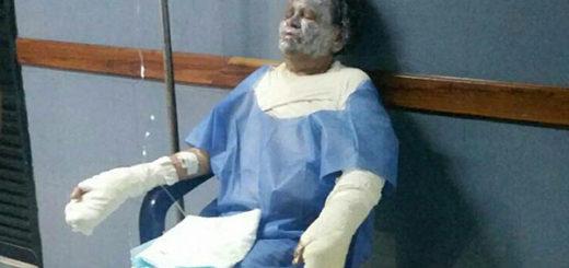 Personas quemada en ataque de molotov a autobús | Foto: Twitter