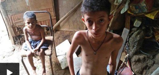 Este es el drama de la desnutrición infantil en Venezuela |Captura de video