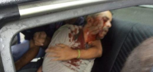 Joven resultó herido en el ojo durante trancazo en Sabana Grande | Foto: @KeiberSolano