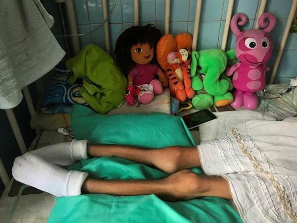 La desnutrición infantil continúa avanzando |Foto: Reuters