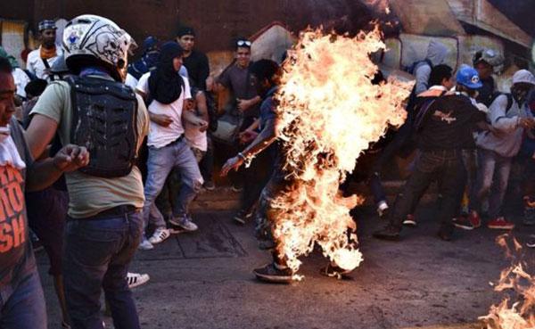Orlando Figuera, joven quemado en Altamira | Foto: @VTVCanal8