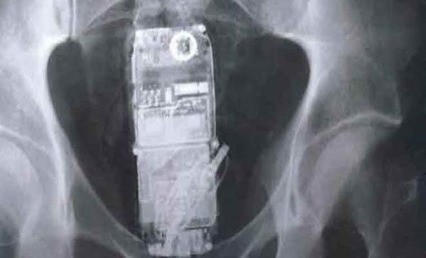 Presos en Brasil escondieron teléfonos en sus estómagos |Imagen referencial