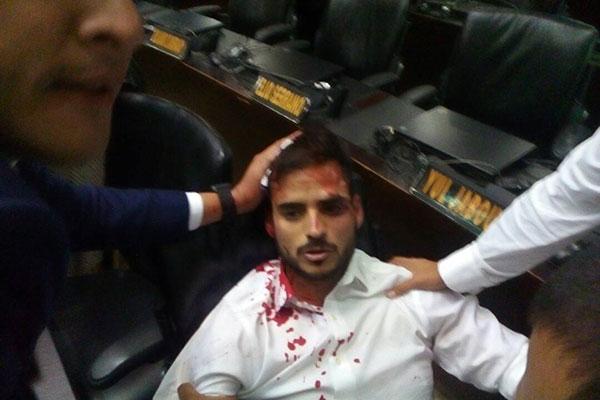 El diputado Armando Armas fue uno de los heridos | Foto: Twitter