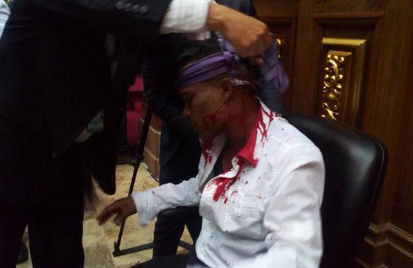 Cinco diputados resultaron heridos durante el asalto | Foto: Twitter