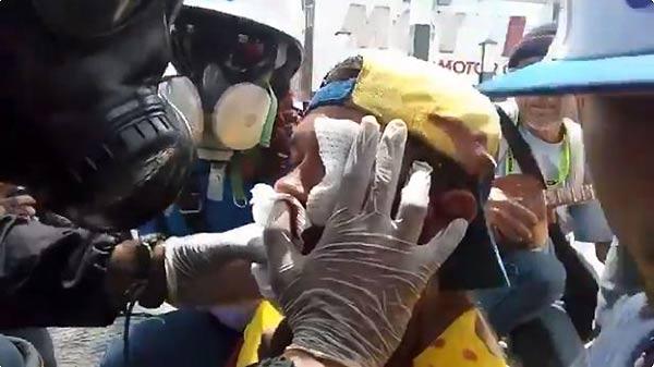 Violinista Wuilly Arteaga herido en el rostro | Foto: captura de video