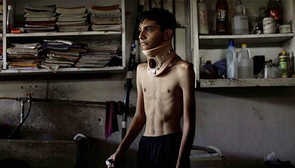 Herido durante protesta   Foto: Reuters