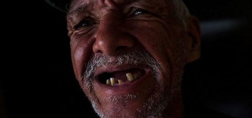 Crisis deja sin dientes a los venezolanos | Foto: El Estímulo