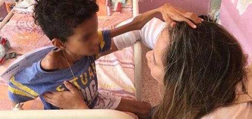 Murió por desnutrición adolescente de 13 años en Portuguesa | Foto cortesía