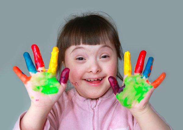 niña con sindrome de Down